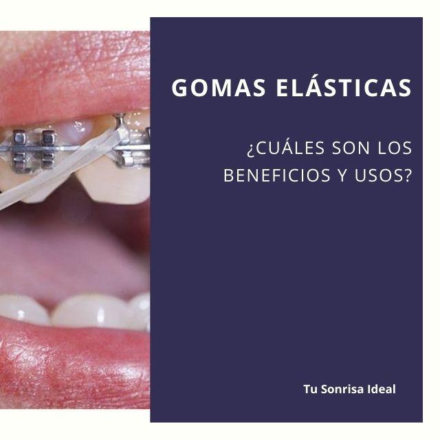 gomas elasticas ortodoncia